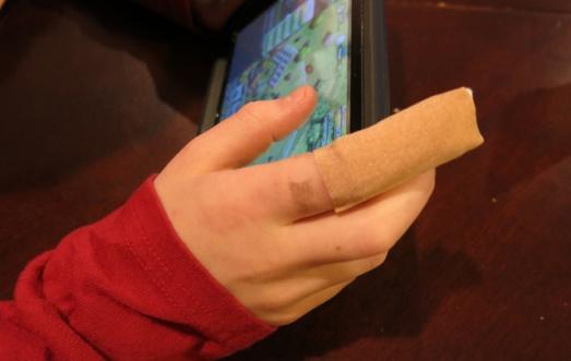 ER Charlie finger bandage
